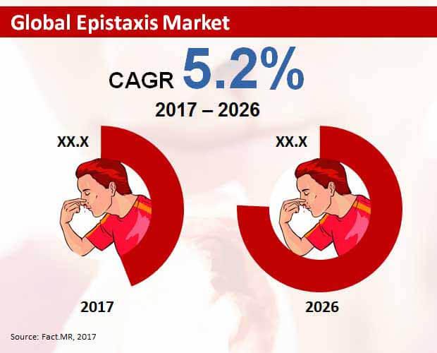 epistaxis market