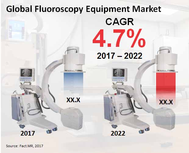 Fluoroscopy Equipment Market Forecast, Trend Analysis & Competition  Tracking – Global Market insights 2017 to 2022