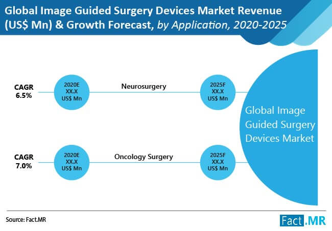 global image guided surgery devices market 2